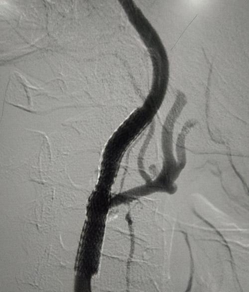 carotid artery stenting