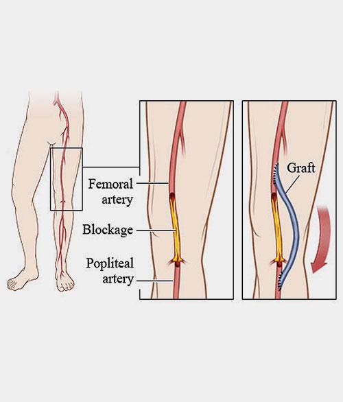 Vascular Bypass Surgery