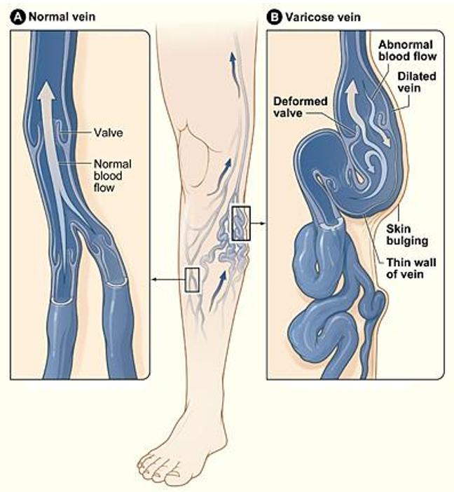 Best Vascular Doctor in Vadodara