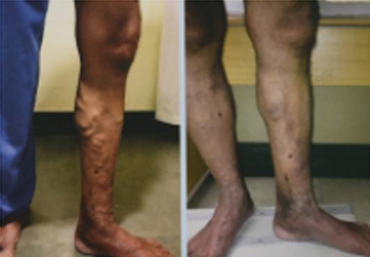 Vascular Surgery Treatment in Vadodara