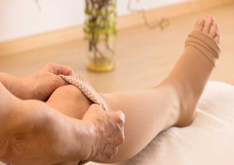Minimal Invasive Treatment For Varicose Veins